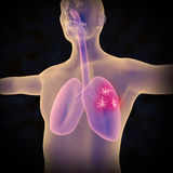 Lung Cancer stock illustrationer