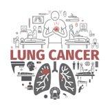 Lung Cancer baner Tecken orsaker, behandling Vektortecken för rengöringsdukdiagram royaltyfri illustrationer
