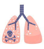 Lung Cancer. A concept for lung cancer or lung disease Royalty Free Stock Photos