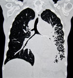 Lung cancer CT Stock Image