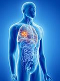 Lung cancer. 3d rendered, medically accurate illustration of lung cancer Stock Photo