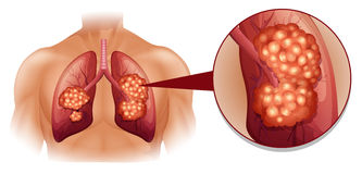 Lung cancer diagram in details Royalty Free Stock Photography