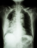 Lung cancer .Film chest x-ray show right lung mass , wide mediastinum , pneumonia and right pleural effusion Royalty Free Stock Photo