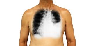 Lung Cancer Le coffre et le rayon X humains montrent l'effusion pleurale laissée le poumon dû au cancer de poumon Images libres de droits