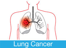 Lung cancer notification Royalty Free Stock Photo