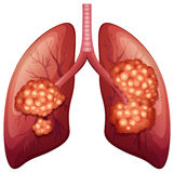Lung cancer process in detail Royalty Free Stock Photography