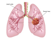 Lung cancer. Simple medical illustration of the symptoms of lung cancer Stock Photography