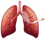 Lung cancer with smoke Royalty Free Stock Photo