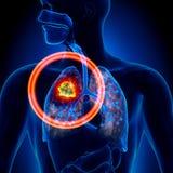 Lung Cancer - tumör royaltyfri illustrationer