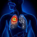Lung Cancer - Tumor. Detailed view Royalty Free Stock Photography