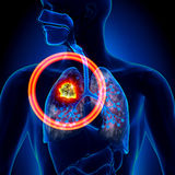 Lung Cancer - Tumor. Detail in detailed view Royalty Free Stock Image