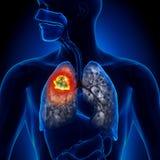 Lung Cancer - tumör Royaltyfri Fotografi