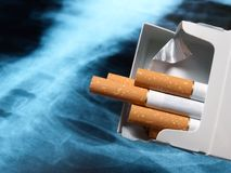 Lung and cigarettes Royalty Free Stock Images