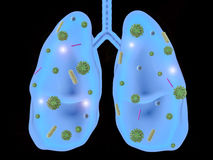Lung disease with bacteria cells Stock Photos