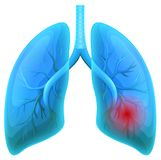 Lung Disease sur le fond blanc illustration stock