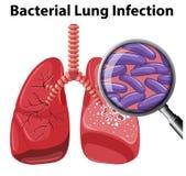 Lung Infection bacteriano en el fondo blanco ilustración del vector