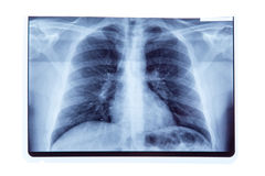 Lung radiography x-ray result. Isolated on white background stock photos