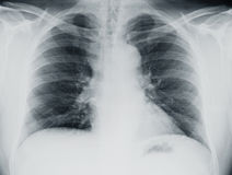 Lung Xray. Chest x-ray of a lung showing infiltrates or congestion stock photography
