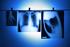 Lung X-ray negatives. Lung X-ray and hand hanging negatives royalty free stock photo