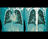 Lung scan. 3D CT scan of the human lung Royalty Free Illustration