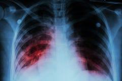 Lung- tuberkulos (tbc): Infiltration för show för bröstkorgröntgenstråle alveolar på båda för mycobacteriumtuberkulos för lunga t Arkivbild