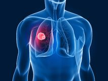 Lung tumor. 3d rendered x-ray illustration of a human torso with tumor in lung Royalty Free Stock Photos