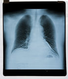 Lung X-ray map Royalty Free Stock Photos
