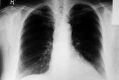 Lung xray. Image of human lung (chest) - front xray royalty free stock photos