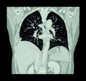 Lungcancer (CT-bildläsning av bröstkorgen och magen: visa höger lungcancer) (Coronalnivån) Royaltyfria Bilder