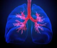 Lungen mit den sichtbaren Bronchien Stockbild