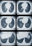 Lungen und Innertomographie Stockfotografie