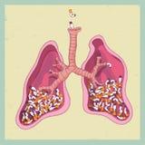 Lungen voll von den Zigaretten Nichtraucher stock abbildung