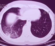 Lungenflügel CT, Pneumonie Lizenzfreie Stockbilder