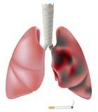 Lungenflügel des Rauchers (mit Tumor) gegen gesunden Lungenflügel Stockfotos