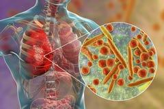 Lungeninfektion verursacht durch Bakterien Mykoplasma pneumoniae vektor abbildung
