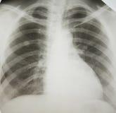 Lungenkrebs. Lizenzfreie Stockfotografie