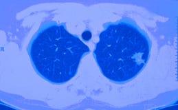 Lungenkrebs CT Stockfoto