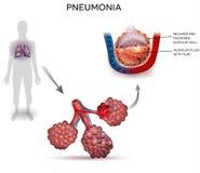 lunginflammation stock illustrationer