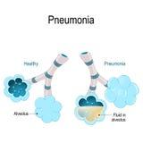lunginflammation Illustrationen visar normala och infekterade alveoler royaltyfri illustrationer