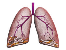 lungs Royaltyfri Bild