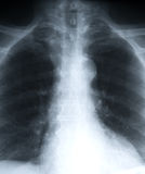 Lungs. A detailed x-ray of a chest showing the lungs stock photo