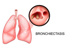 Lungs affected by bronchiectasis disease. Vector illustration of lungs affected by bronchiectasis disease stock illustration