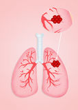 Lungs cancer Royalty Free Stock Images