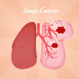 Lungs cancer Stock Image