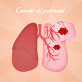 Lungs cancer Royalty Free Stock Photos