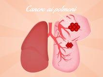 Lungs cancer Stock Photos
