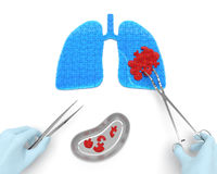 Lungs cancer operation. Oncotomy puzzle concept: hands of surgeon with surgical instruments (tools) performs surgery to remove cancerous growth (malignant Royalty Free Stock Photo