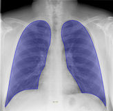 Lungs on chest X-ray Royalty Free Stock Images