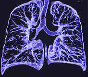 Lungs, CT Royalty Free Stock Photos