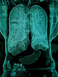 Lungs, CT Royalty Free Stock Images